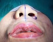 Intervenções corporais extremas – Redução labial