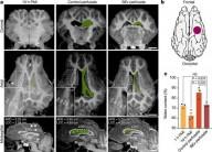 Cientistas ressuscitam células do cérebro de porcos mortos
