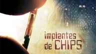 Implantes de chips de tornam populares na República Checa
